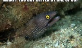 bitten by one of us eel know that feel animal funny pics pictures pic picture image photo images photos lol