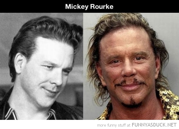 20 Celebrities Who Haven't Aged Well (Click For Full Post)