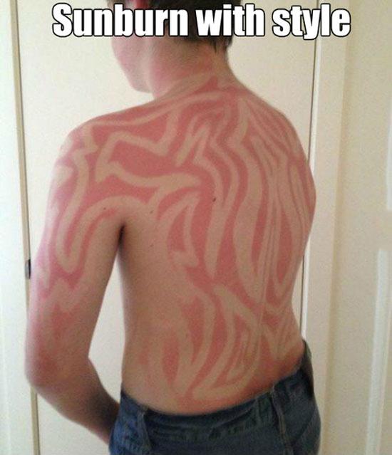 Sunburn With Style